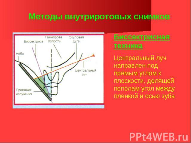 Методы внутриротовых снимков Биссектрисная техника Центральный луч направлен под прямым углом к плоскости, делящей пополам угол между пленкой и осью зуба