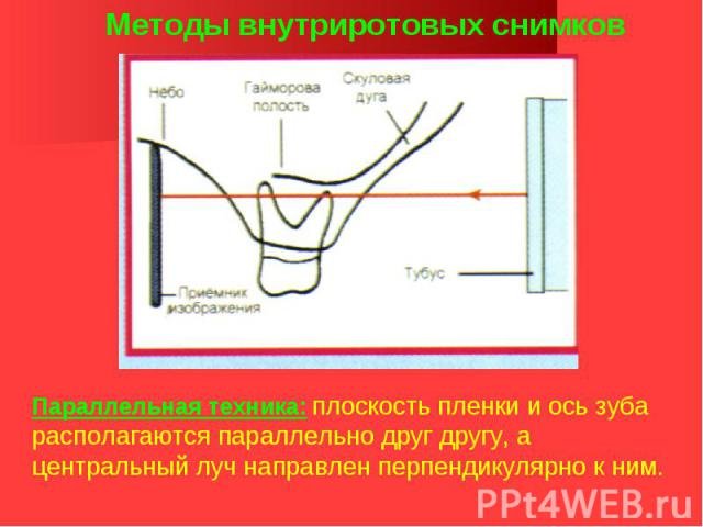 Методы внутриротовых снимков Параллельная техника: плоскость пленки и ось зуба располагаются параллельно друг другу, а центральный луч направлен перпендикулярно к ним.