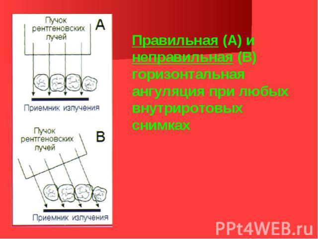 Правильная (А) и неправильная (В) горизонтальная ангуляция при любых внутриротовых снимках