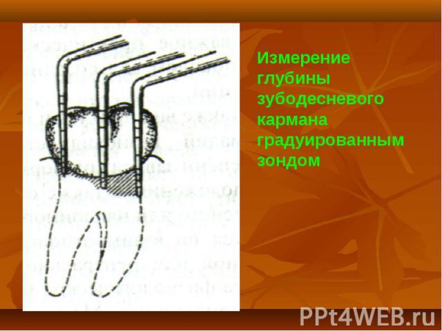 Измерение глубины зубодесневого кармана градуированным зондом