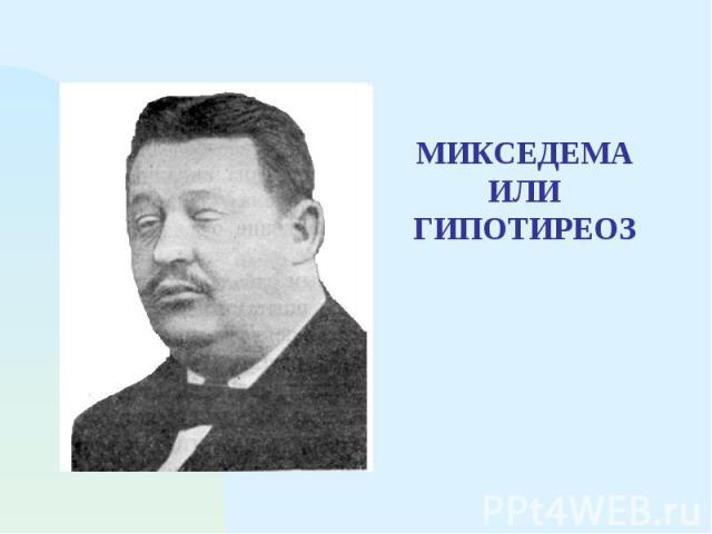 МИКСЕДЕМА ИЛИ ГИПОТИРЕОЗ
