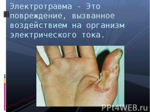 Электротравма - Это повреждение, вызванное воздействием на организм электрическо