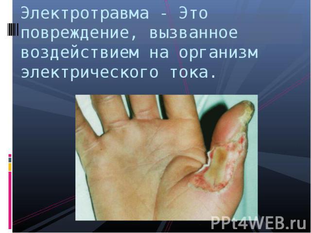 Электротравма - Это повреждение, вызванное воздействием на организм электрического тока.