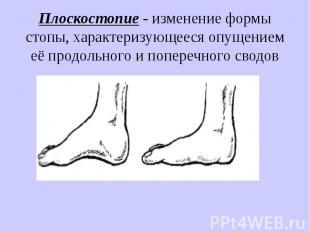 Плоскостопие - изменение формы стопы, характеризующееся опущением её продольного