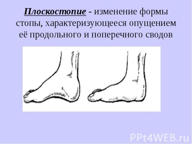 Плоскостопие - изменение формы стопы, характеризующееся опущением её продольного и поперечного сводов