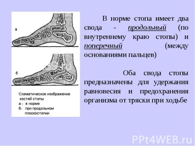 В норме стопа имеет два свода - продольный (по внутреннему краю стопы) и поперечный (между основаниями пальцев) Оба свода стопы предназначены для удержания равновесия и предохранения организма от тряски при ходьбе