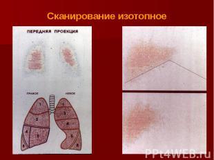 Сканирование изотопное