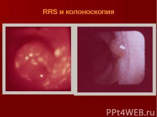 RRS и колоноскопия