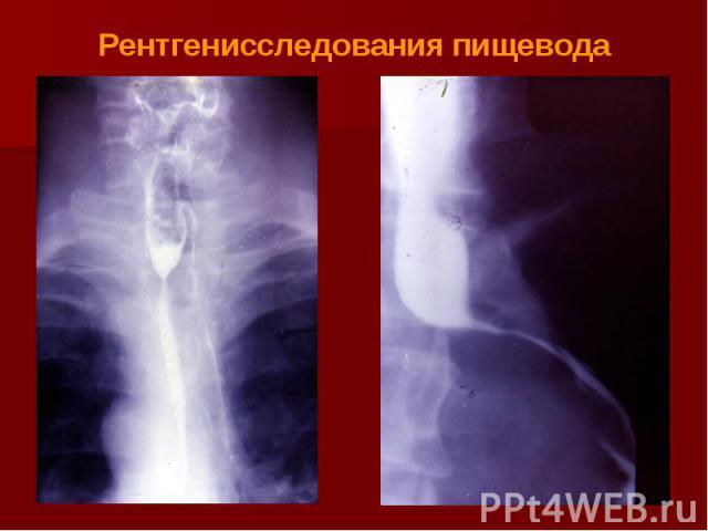 Рентгенисследования пищевода