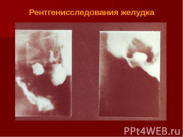 Рентгенисследования желудка