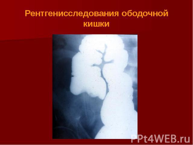 Рентгенисследования ободочной кишки