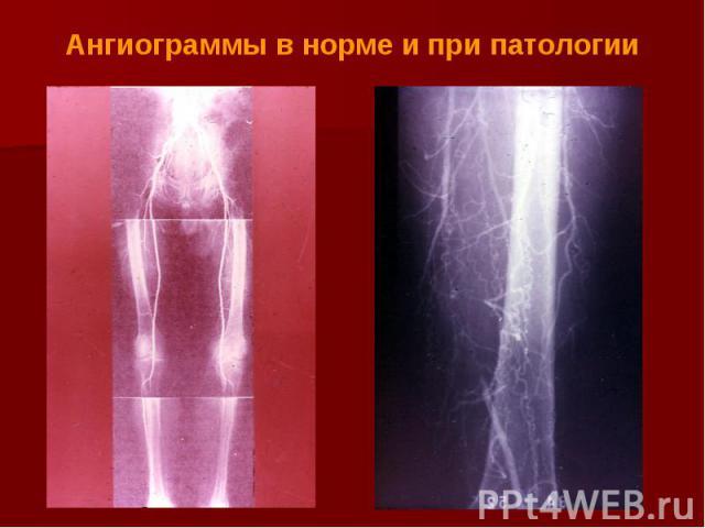 Ангиограммы в норме и при патологии