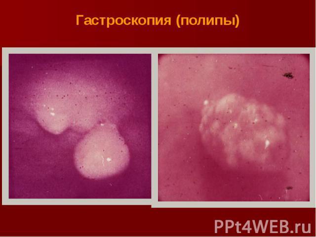 Гастроскопия (полипы)