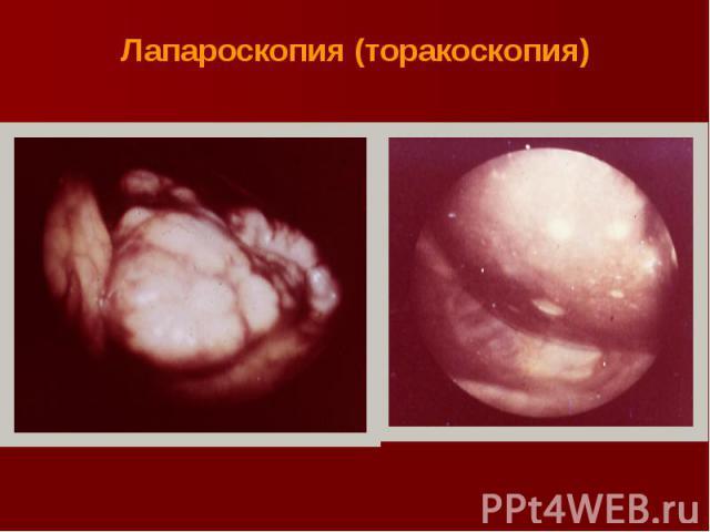 Лапароскопия (торакоскопия)