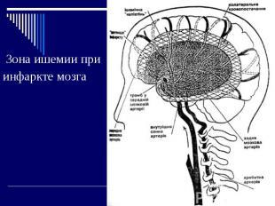 Зона ишемии при инфаркте мозга