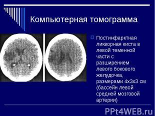 Компьютерная томограмма Постинфарктная ликворная киста в левой теменной части с