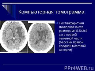 Компьютерная томограмма Постинфарктная ликворная киста размерами 5,5x3х3 см в пр