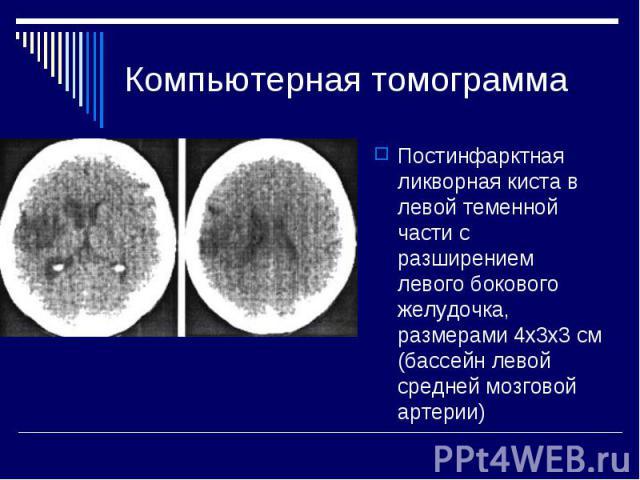 Компьютерная томограмма Постинфарктная ликворная киста в левой теменной части с разширением левого бокового желудочка, размерами 4x3x3 см (бассейн левой средней мозговой артерии)