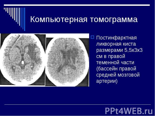 Компьютерная томограмма Постинфарктная ликворная киста размерами 5,5x3х3 см в правой теменной части (бассейн правой средней мозговой артерии)