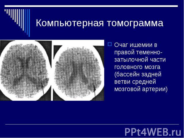 Компьютерная томограмма Очаг ишемии в правой теменно-затылочной части головного мозга (бассейн задней ветви средней мозговой артерии)