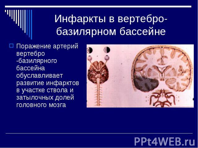 Инфаркты в вертебро-базилярном бассейне Поражение артерий вертебро -базилярного бассейна обуславливает развитие инфарктов в участке ствола и затылочных долей головного мозга