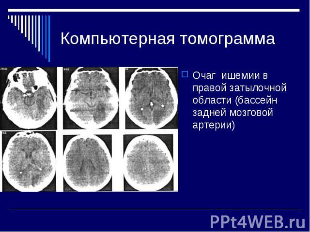 Компьютерная томограмма Очаг ишемии в правой затылочной области (бассейн задней мозговой артерии)