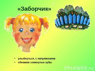 «Заборчик» улыбнуться, с напряжениемобнажив сомкнутые зубы