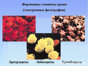 Форменные элементы крови (электронные фотографии) Эритроциты Лейкоциты Тромбоцит