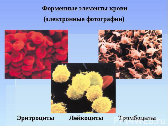 Форменные элементы крови (электронные фотографии) Эритроциты Лейкоциты Тромбоциты