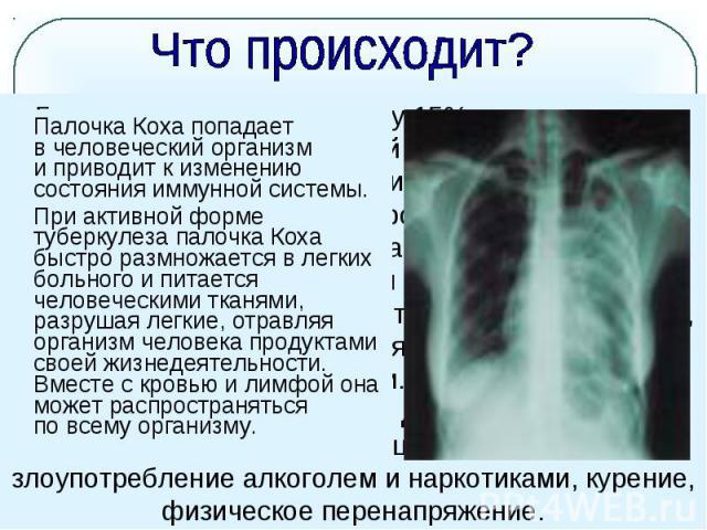 Что происходит? Палочка Коха попадает вчеловеческий организм иприводит кизменению состояния иммунной системы. При активной форме туберкулеза палочка Коха быстро размножается влегких больного ипитается человеческими тканями, разрушая легкие, отр…