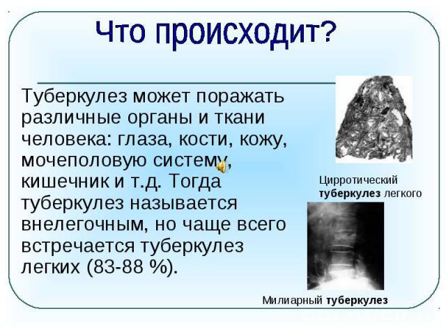 Что происходит? Туберкулез может поражать различные органы иткани человека: глаза, кости, кожу, мочеполовую систему, кишечник ит.д. Тогда туберкулез называется внелегочным, ночаще всего встречается туберкулез легких (83-88 %).