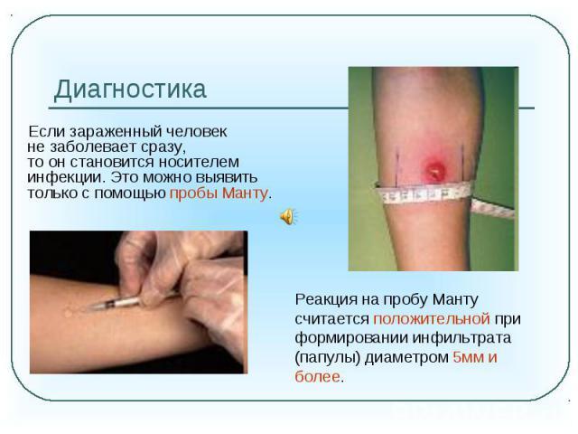 Диагностика Если зараженный человек незаболевает сразу, тоонстановится носителем инфекции. Это можно выявить только спомощью пробы Манту. Реакция на пробу Манту считается положительной при формировании инфильтрата (папулы) диаметром 5мм и более.