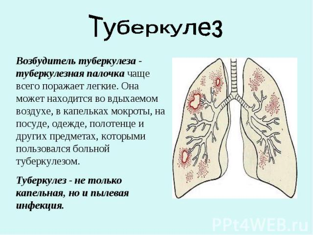 ТуберкулезВозбудитель туберкулеза - туберкулезная палочка чаще всего поражает легкие. Она может находится во вдыхаемом воздухе, в капельках мокроты, на посуде, одежде, полотенце и других предметах, которыми пользовался больной туберкулезом. Туберкул…