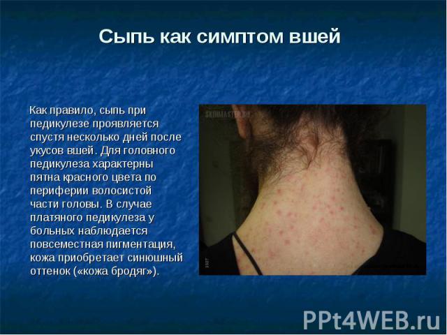 Сыпь как симптом вшей Как правило, сыпь при педикулезе проявляется спустя несколько дней после укусов вшей. Для головного педикулеза характерны пятна красного цвета по периферии волосистой части головы. В случае платяного педикулеза у больных наблюд…