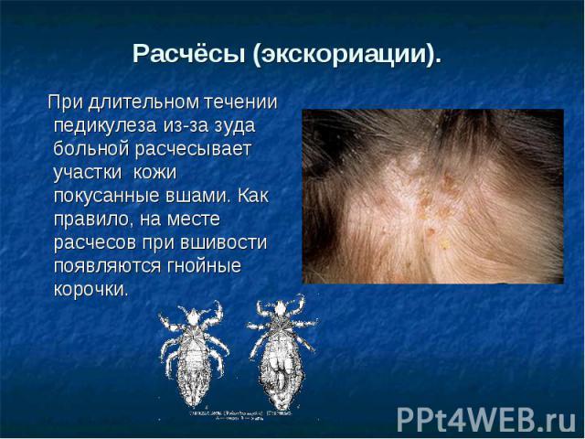 Расчёсы (экскориации). При длительном течении педикулеза из-за зуда больной расчесывает участки кожи покусанные вшами. Как правило, на месте расчесов при вшивости появляются гнойные корочки.
