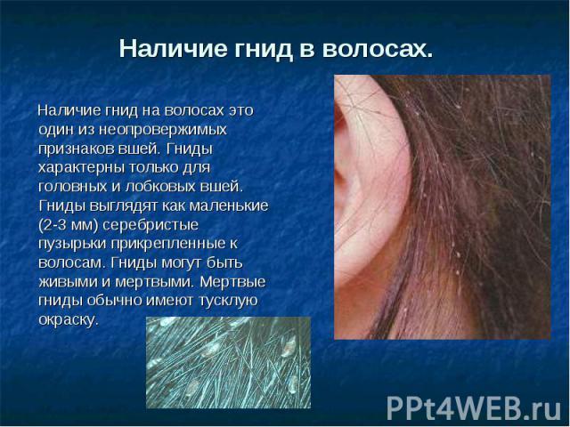 Наличие гнид в волосах. Наличие гнид на волосах это один из неопровержимых признаков вшей. Гниды характерны только для головных и лобковых вшей. Гниды выглядят как маленькие (2-3 мм) серебристые пузырьки прикрепленные к волосам. Гниды могут быть жи…