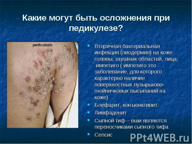 Какие могут быть осложнения при педикулезе? Вторичная бактериальная инфекция (пиодермия) на коже головы, заушных областей, лица, импетиго ( импетиго это заболевание, для которого характерно наличие поверхностных пузырьково-гнойничковых высыпаний на…