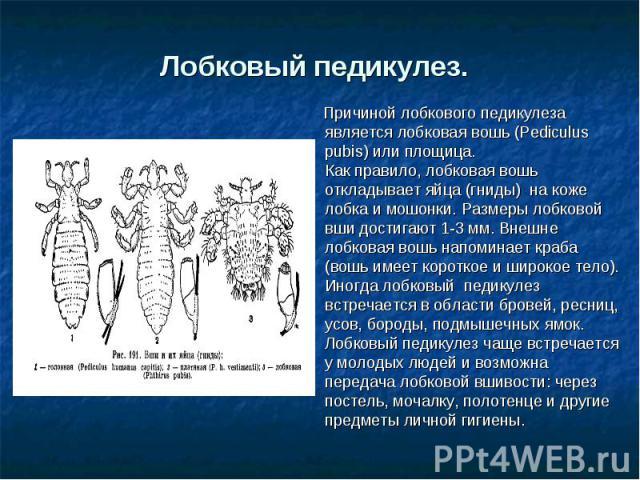 Лобковый педикулез. Причиной лобкового педикулеза является лобковая вошь (Pediculus pubis) или площица.Как правило, лобковая вошь откладывает яйца (гниды) на коже лобка и мошонки. Размеры лобковой вши достигают 1-3 мм. Внешне лобковая вошь напомина…