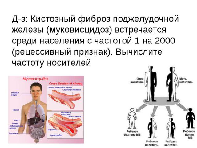 Д-з: Кистозный фиброз поджелудочной железы (муковисцидоз) встречается среди населения с частотой 1 на 2000 (рецессивный признак). Вычислите частоту носителей