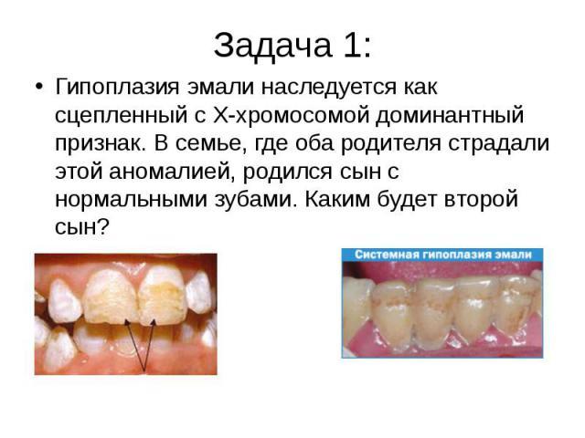 Задача 1:Гипоплазия эмали наследуется как сцепленный с Х-хромосомой доминантный признак. В семье, где оба родителя страдали этой аномалией, родился сын с нормальными зубами. Каким будет второй сын?