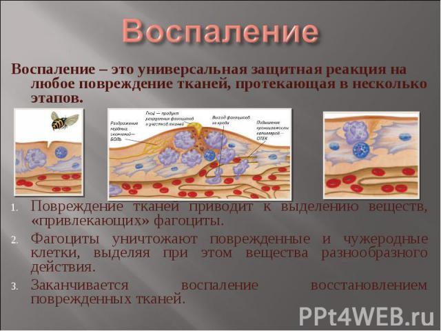 Воспаление Воспаление – это универсальная защитная реакция на любое повреждение тканей, протекающая в несколько этапов.Повреждение тканей приводит к выделению веществ, «привлекающих» фагоциты.Фагоциты уничтожают поврежденные и чужеродные клетки, выд…