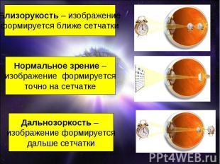 Близорукость – изображениеформируется ближе сетчаткиНормальное зрение –изображен