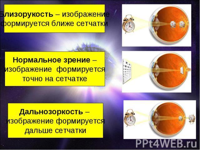 Близорукость – изображениеформируется ближе сетчаткиНормальное зрение –изображение формируетсяточно на сетчаткеДальнозоркость – изображение формируетсядальше сетчатки