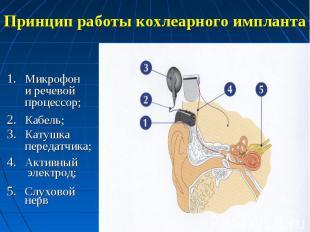 Принцип работы кохлеарного импланта Микрофон и речевой процессор;Кабель;Катушка