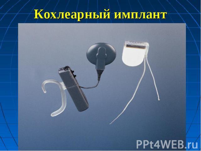 Кохлеарный имплант