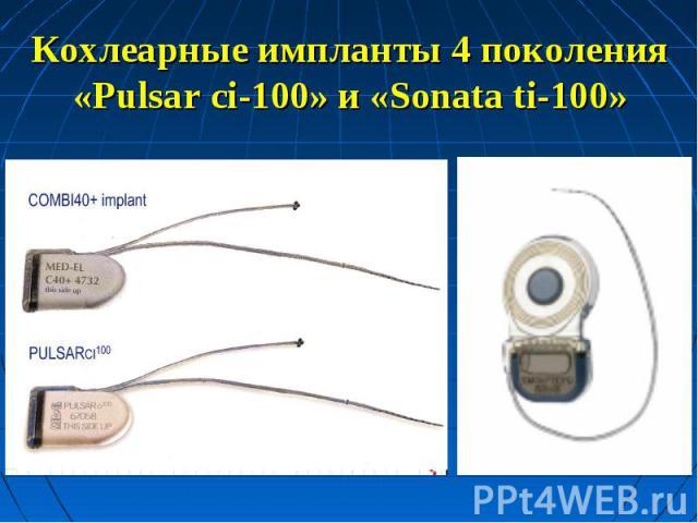 Кохлеарные импланты 4 поколения«Pulsar ci-100» и «Sonata ti-100»