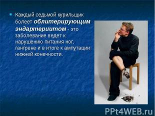 Каждый седьмой курильщик болеет облитерирующим эндартериитом - это заболевание в