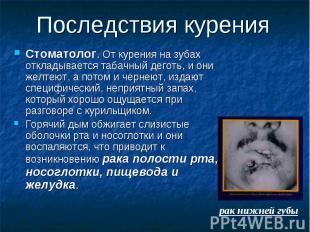Последствия курения Стоматолог. От курения на зубах откладывается табачный дегот