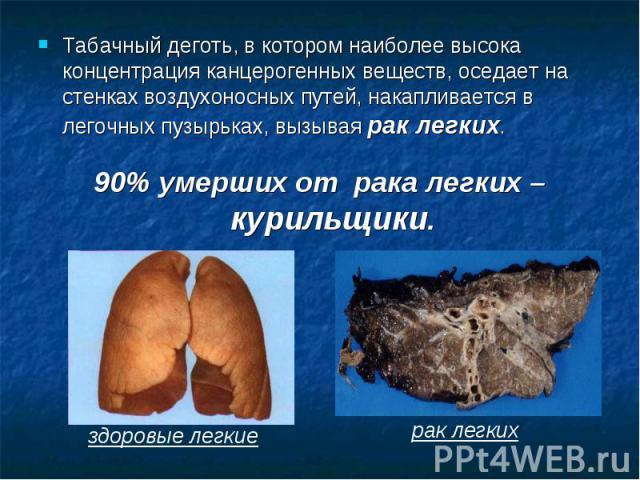 Табачный деготь, в котором наиболее высока концентрация канцерогенных веществ, оседает на стенках воздухоносных путей, накапливается в легочных пузырьках, вызывая рак легких. 90% умерших от рака легких – курильщики.