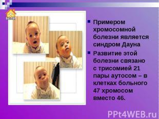 Примером хромосомной болезни является синдром ДаунаРазвитие этой болезни связано